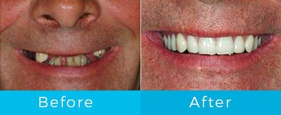 Smile Gallery - Before and After
